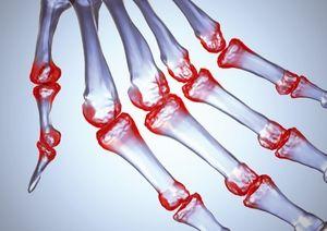 Analiza factorului reumatoid