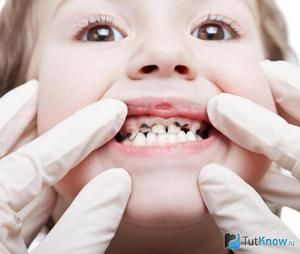 Cum să aveți grijă de dinții copilului