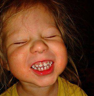 Cum să te ocupi de dinții de argint