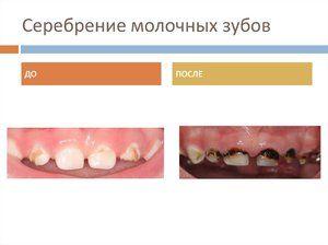 Argintarea dinților din lapte