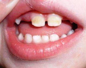 Fluorură de dinți