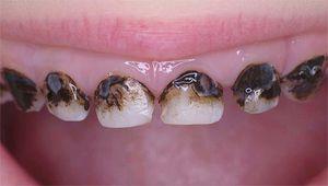 Stingerea dinților