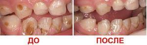 Tratamentul și argintarea dinților