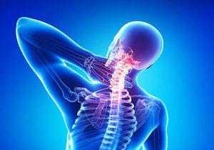 Pentru a trata o osteochondroză a gâtului