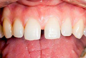 De ce există un decalaj între dinți