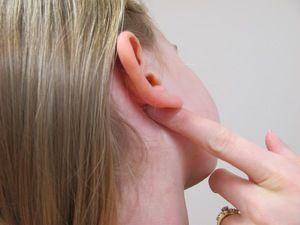 Cauzele conurilor din spatele urechii
