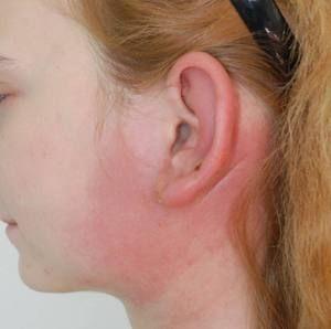 De ce era o bucată în spatele urechii