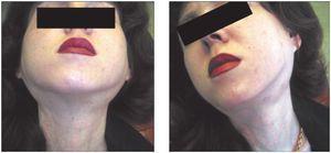 Înfrângerea glandelor salivare este sialadenita
