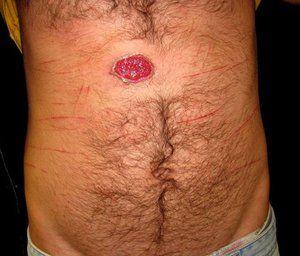 Cum se determină tipul de sifilis