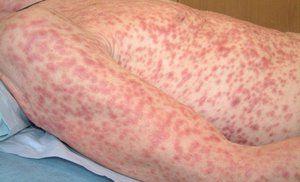 A treia etapă a sifilisului este o erupție cutanată și alte complicații