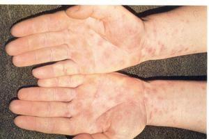 Primele semne de sifilis și metode de tratament