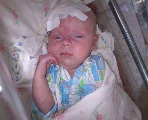 Diagnosticul dsp la nou-născuți