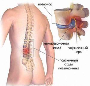 Herniation a regiunii lombare - ce este?