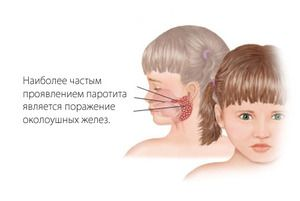Simptomele de oreion - cum se identifică boala