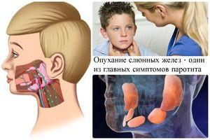 Umflarea glandelor salivare ca semn de oreion la un copil