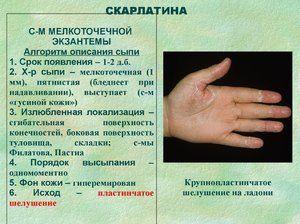 Cauze de febră scarlată