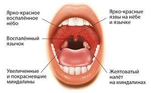 Cauze ale mononucleozei