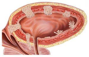 Tumora vezicii urinare la femei
