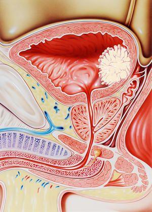 De ce apare o tumoare a vezicii urinare?