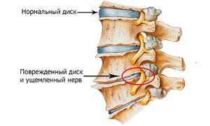 Cum se manifestă osteochondroza regiunii cervicale