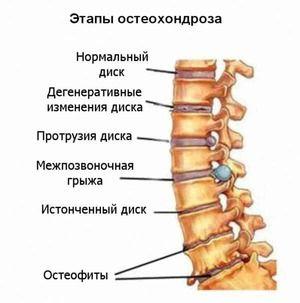 Tratamentul osteocondrozei