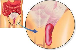 Tratamentul herniei inghinale