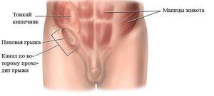Simptomele herniei inghinale la bărbați