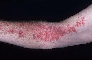 Ce medicamente pentru a vindeca herpesul?