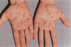 Remedii populare pentru tratamentul herpesului