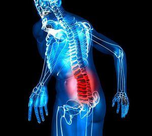Cum să tratați coloana vertebrală cu o schimbare a coloanei vertebrale lombare