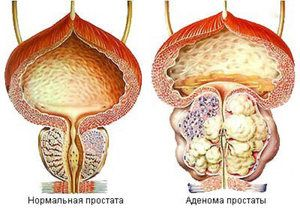 Remedii populare pentru tratamentul prostatei
