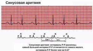 Aritmie sinusală