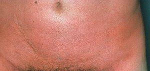 Simptomele de scarlatină în timpul sarcinii