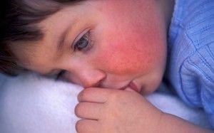 Formă de scarlat febră