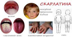 Caracteristici ale tratamentului de scarlat febră