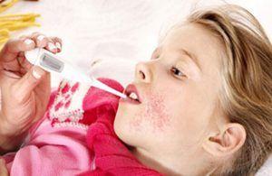 Cum să obțineți o vaccinare împotriva scarlatului