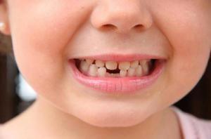 Dinți dinți