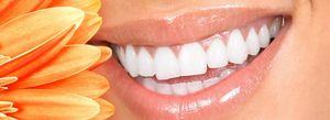 Cum sa albiti dintii laser