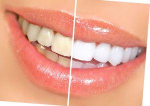 Procedura de albire a dinților