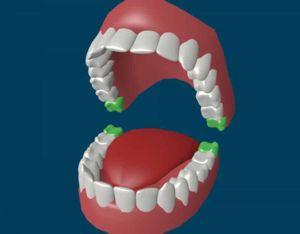 Numărul de dinți la un adult, împreună cu dinții de înțelepciune - 32