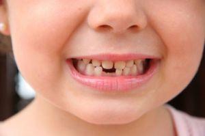Pe masura ce un copil creste treptat 20 dinti de lapte