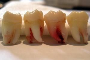 Numărul de dinți ai înțelepciunii umane și funcțiile lor