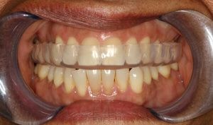Capcane pentru dinți
