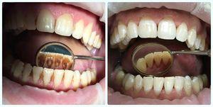 Preparate speciale pentru îndepărtarea plăcilor pe dinți
