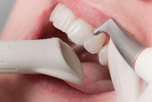 Metode de eliminare a plăcii pe dinți