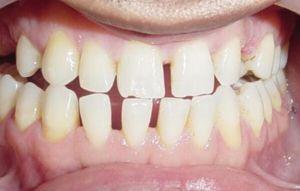 Alți dinți rare