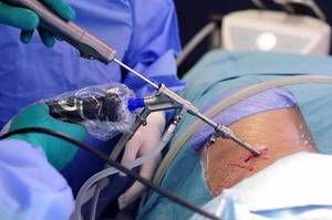 Operația cu laser pentru a elimina o hernie