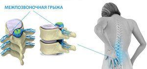 Boala pe coloana vertebrală