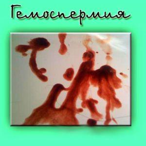 Hemospermia - ce este această boală