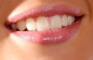 Caracteristicile de albire a dintilor